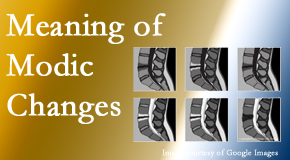 Aaron Chiropractic Clinic sees many back pain and neck pain patients who bring their MRIs with them to the office. Modic changes are often seen.