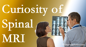 Fort Wayne MRIs for spinal stenosis may be revealing…or confusing.