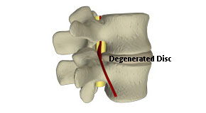 degenerated disc in the lower back