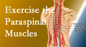 Aaron Chiropractic Clinic explains the importance of paraspinal muscles and their strength for Fort Wayne back pain relief.