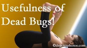 Aaron Chiropractic Clinic finds dead bugs quite useful in the healing process of Fort Wayne back pain for many chiropractic patients.
