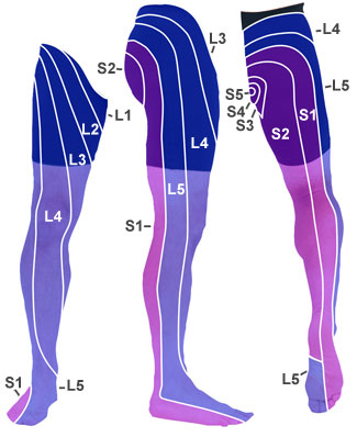Referred pain in the leg