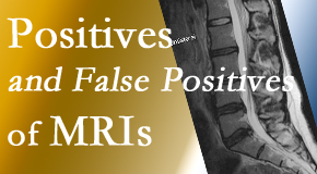 Aaron Chiropractic Clinic carefully chooses when and if MRI images are needed to guide the Fort Wayne chiropractic treatment plan.