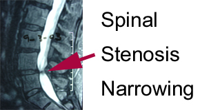 xray image of spinal stenosis narrowing