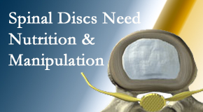 290-160-spinal-discs-need-nutrition.jpg